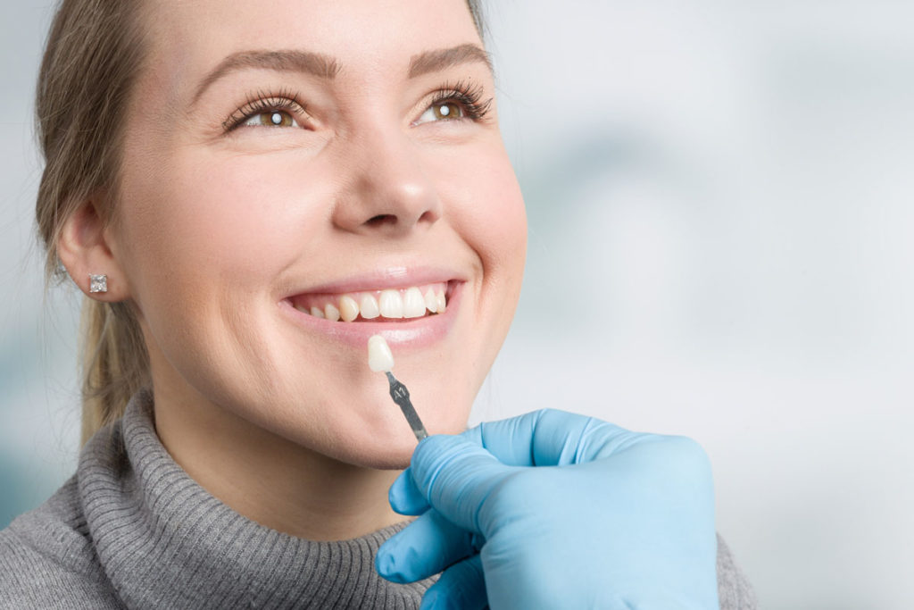 Crown patient smiling, dentist holding veneer to select color