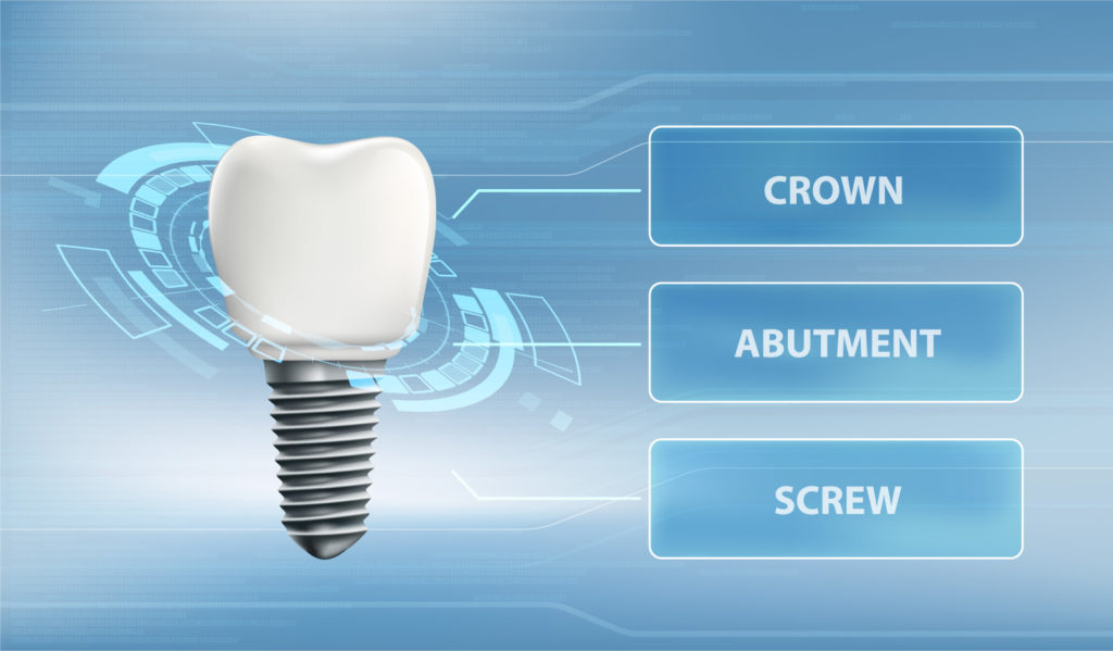 Dental implant diagram—crown, abutment, screw components