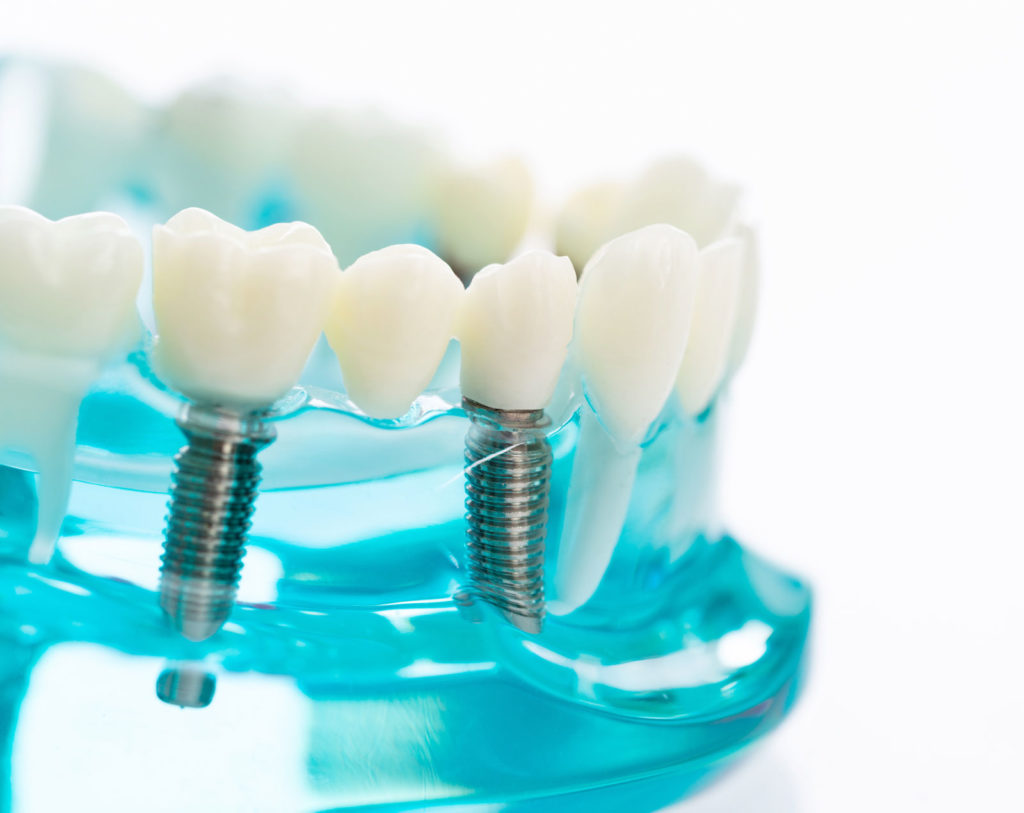 Dental implant model - blue